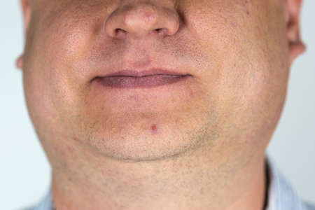 Male face with pimples on the nose and chin close up. Banque d'images
