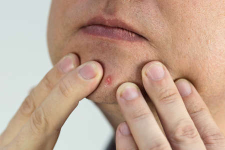 A large ripe pimple on a man's face, close-up.