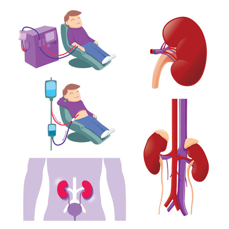 dialysis: Hemodialysis and peritoneal dialysis are both used to treat kidney - vector illustration Illustration