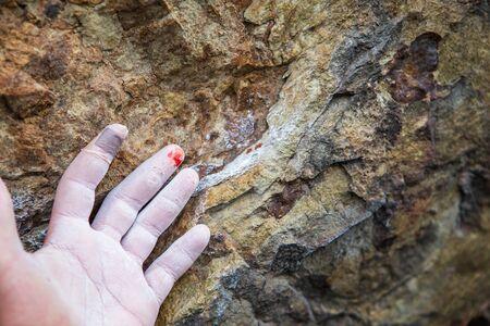 rock climber: Injured hand of a rock climber