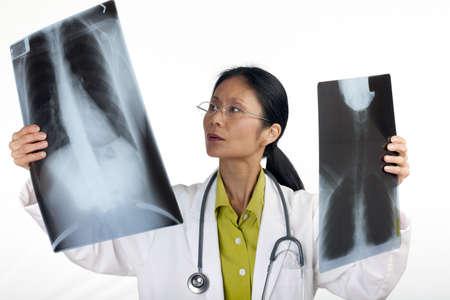 preocupacion: M�dico mujer asi�tica revisa los resultados de una radiograf�a de t�rax. Horizontal de disparo. Aislados en blanco. Foto de archivo