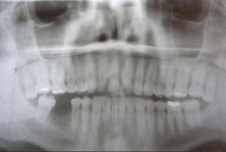 Dental x-ray of man Stock Photo - 10320942