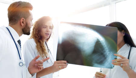 medical workers looking at patients x-ray film
