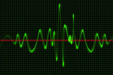 oscilloscope: Oscilloscope Wave Sound Pattern Stock Photo