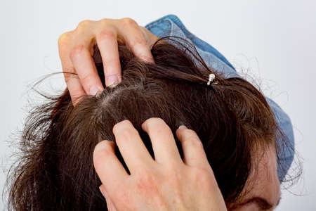 Woman controls head on hair loss