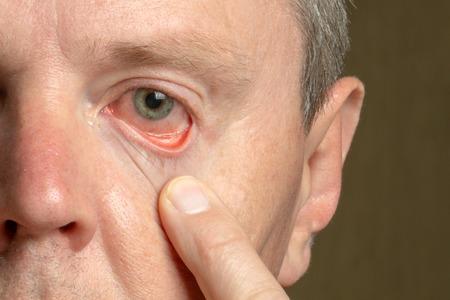 Ojo masculino de primer plano con párpado y córnea enrojecidos, conjuntivitis Foto de archivo