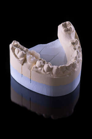 Ceramic tooth on a plaster model with a totally black background