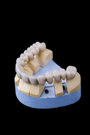 ceramic teeth on the model of plaster on a black background