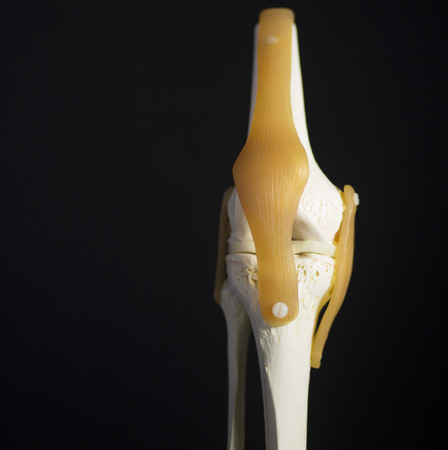 collateral: Medical knee joint meniscus plastic demonstration teaching model against plain black studio background. The knee joint meniscus femur thigh bone and tibia shin traumatology medical plastic model is used to show articulation and possible injuries.