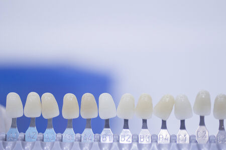 Dentists dental crown color guide photo