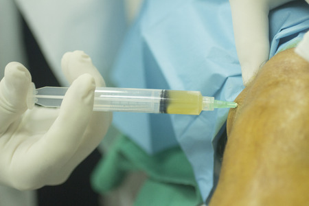 Close-up color photo of a female hospital clinic operating theater room surgeon wearing sterile blue gloves and senior male patient aged 65-70 receiving a an injection of human growth factors in his knee with sterilising liquid and sterile green hospital