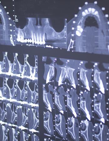 impacted: Dental xray scan Stock Photo