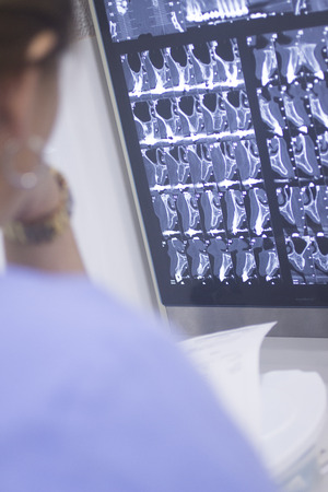Dental xray scan on viewer in dentist?s office clinic. photo