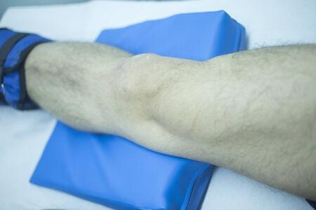 luxacion: Pierna de hombre herido en el tratamiento de fisioterapia en la cl�nica hospital.