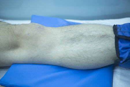 joint effort: Leg of injured man in physiotherapy treatment in hospital clinic.