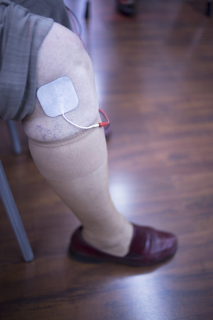 leg calf injury: Female patient knee, leg, thigh and calf in physiotherapy rehabiliation treatment from injury in hospital clinic with electrical stimulus attached with plaster. Stock Photo