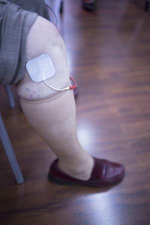 fisioterapia: Mujer paciente rodilla, pierna, muslo y la pantorrilla en el tratamiento Rehabiliation fisioterapia de una lesi�n en la cl�nica hospital con est�mulo el�ctrico conectado con yeso. Foto de archivo