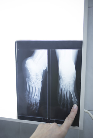thumb x ray: Female medical doctor pointing with finger at radiograph x-ray image on viewing light screen monitor showing hand of patient in scan.