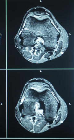 imaging: MRI magentic resonance imaging nuclear scanning scan test results knee meniscus injury photo. Stock Photo