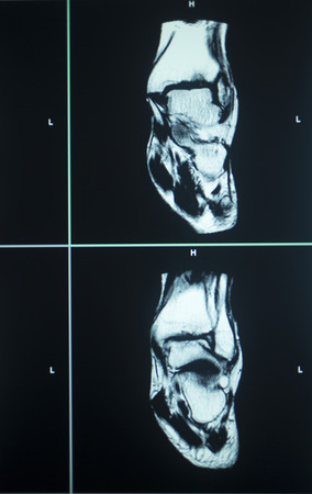 resonance: MRI magentic resonance imaging nuclear scanning scan test results ankle injury photo. Stock Photo