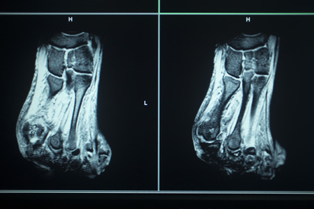 anterior: MRI magentic resonance imaging nuclear scanning scan test results foot toes injury photo. Stock Photo