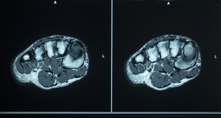 resonance: MRI magentic resonance imaging nuclear scanning scan test results foot toes injury photo. Stock Photo