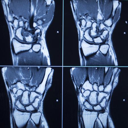 Röntgenaufnahmen Der Hand Lizenzfreie Fotos, Bilder Und Stock ...