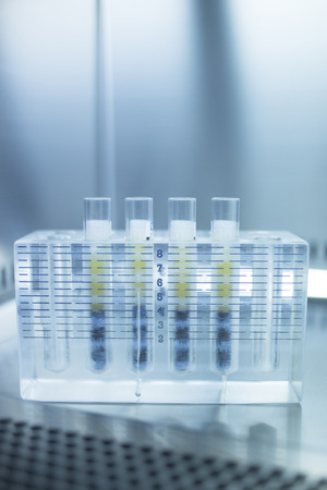 Medical laboratory preparation of human growth factors  PRP platelet rich plasma in hospital clinic for orthopedic surgery and Traumatology rehabilitation treatment with test tubes in sterile environment.