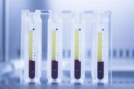 Medical laboratorio preparazione di crescita umana fattori PRP Plasma Ricco di Piastrine in clinica ospedale per la chirurgia ortopedica e il trattamento riabilitativo Traumatologia con provette in ambiente sterile. Archivio Fotografico - 38643397