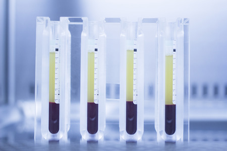 Medical laboratory preparation of human growth factors  PRP platelet rich plasma in hospital clinic for orthopedic surgery and Traumatology rehabilitation treatment with test tubes in sterile environment. Banco de Imagens - 38643397