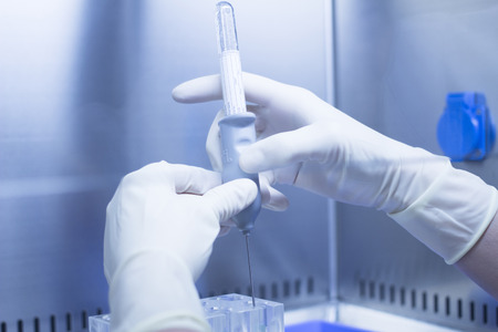 platelet: Hands of medical laboratory technician wearing white sterile gloves preparing PRP platelet rich plasma from blood human growth factors in hospital clinic for orthopedic surgery and Traumatology rehabilitation treatment with syringe injection and test tube Stock Photo