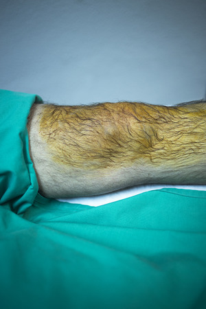 Patient in orthopaedics and Trumatology hospital clinic before injection of PRP Platelet Rich PLasma Human Growth Factors Stem Cells to treat cartilage wastage joint injury and pain. photo