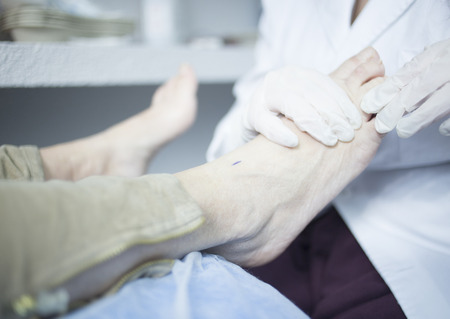 chiropody: Podology podologist examining patient with chiropody treatment used to treat foot pain, muscles injuries, strains and tension in hospital physiotherapy clinic medical examination.