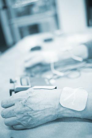 fisioterapia: Paciente mano, la muñeca y el brazo en impulso eléctrico fisioterapia tratamiento Rehabiliation estimulación electro de una lesión en la clínica hospital con estímulo eléctrico conectado con yeso.