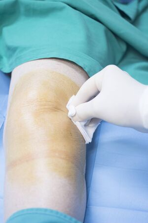 human factors: Patient in orthopaedics and Trumatology hospital clinic after injection of PRP Platelet Rich PLasma Human Growth Factors Stem Cells to treat cartilage wastage joint injury and pain.
