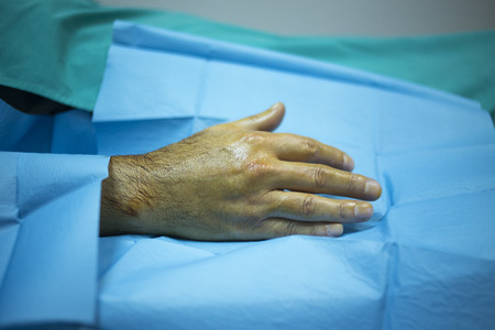 human factors: Patient hand in orthopaedics and Trumatology hospital clinic after injection of PRP Platelet Rich PLasma Human Growth Factors Stem Cells to treat cartilage wastage joint injury and pain. Stock Photo