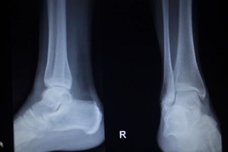 cat scan: X-ray orthopedic medical CAT scan of painful ankle foot injury in traumatology hospital clinic.