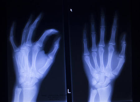 cat scan: X-ray orthopedic medical CAT scan of painful hand fingers thumb injury in Traumatology hospital clinic.