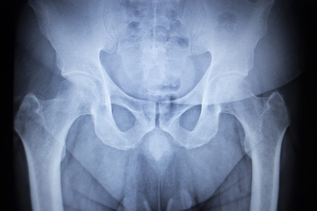 orthopedics: X-ray scan  image of hip joints human skeleton in blue gray tones. Scanned in orthopedics traumatology surgery hospital clinic.