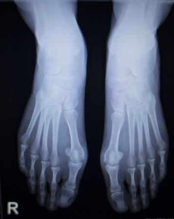 traumatology: X-ray orthopedic medical anterior posterior AP CAT scan of painful foot injury in traumatology hospital clinic.