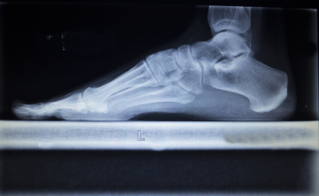 traumatology: X-ray orthopedic medical CAT scan of painful foot injury in traumatology hospital clinic showing load weight bearing.