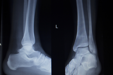traumatology: X-ray orthopedic medical CAT scan of painful ankle foot injury in traumatology hospital clinic.