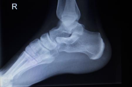 traumatology: X-ray orthopedic medical CAT scan of painful foot injury in traumatology hospital clinic.