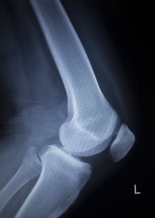 cat scan: X-ray orthopedic medical CAT scan of painful knee meniscus injury leg in traumatology hospital clinic.