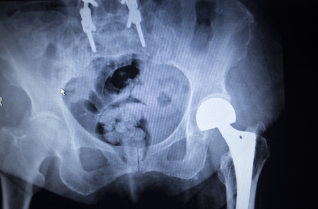 X-ray scan  image of hip joints with orthopedic hip joint replacement implant head and screws in human skeleton in blue gray tones. Scanned in orthopedics traumatology surgery hospital clinic.
