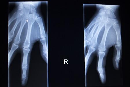 traumatology: X-ray orthopedic medical CAT scan of painful hand fingers thumb injury in Traumatology hospital clinic.