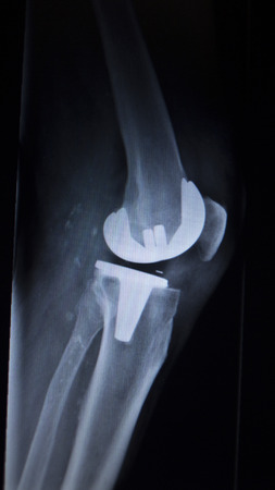 prosthetics: X-ray orthopedic medical CAT scan of painful knee meniscus injury leg in Traumatology hospital clinic with prosthetics Trauma implant. Stock Photo
