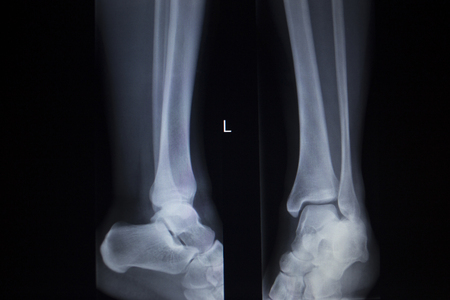 cat scan: X-ray orthopedic medical anterior posterior AP CAT scan of painful foot injury in traumatology hospital clinic.