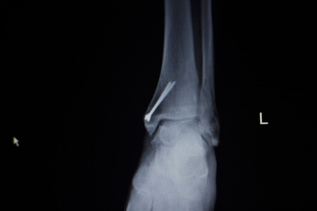 titanium: X-ray orthopedic medical CAT scan of painful ankle foot injury in traumatology hospital clinic with titanium screw prosthetics implant.