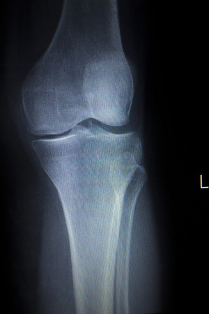 traumatology: X-ray orthopedic medical CAT scan of painful knee meniscus injury leg in Traumatology hospital clinic with prosthetics Trauma implant. Stock Photo